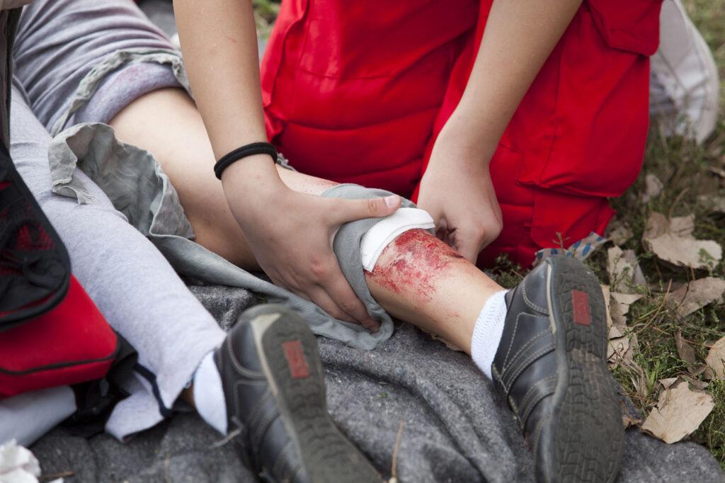 burn injury compensation claim solicitors Aberdeen