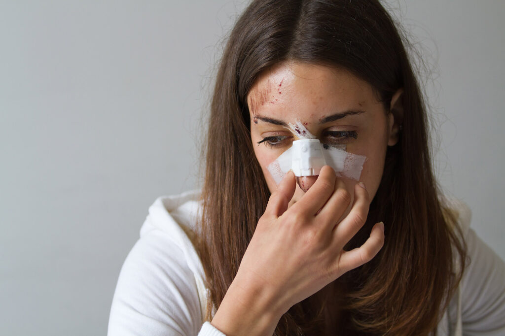 broken nose personal injury compensation claims solicitors Aberdeen