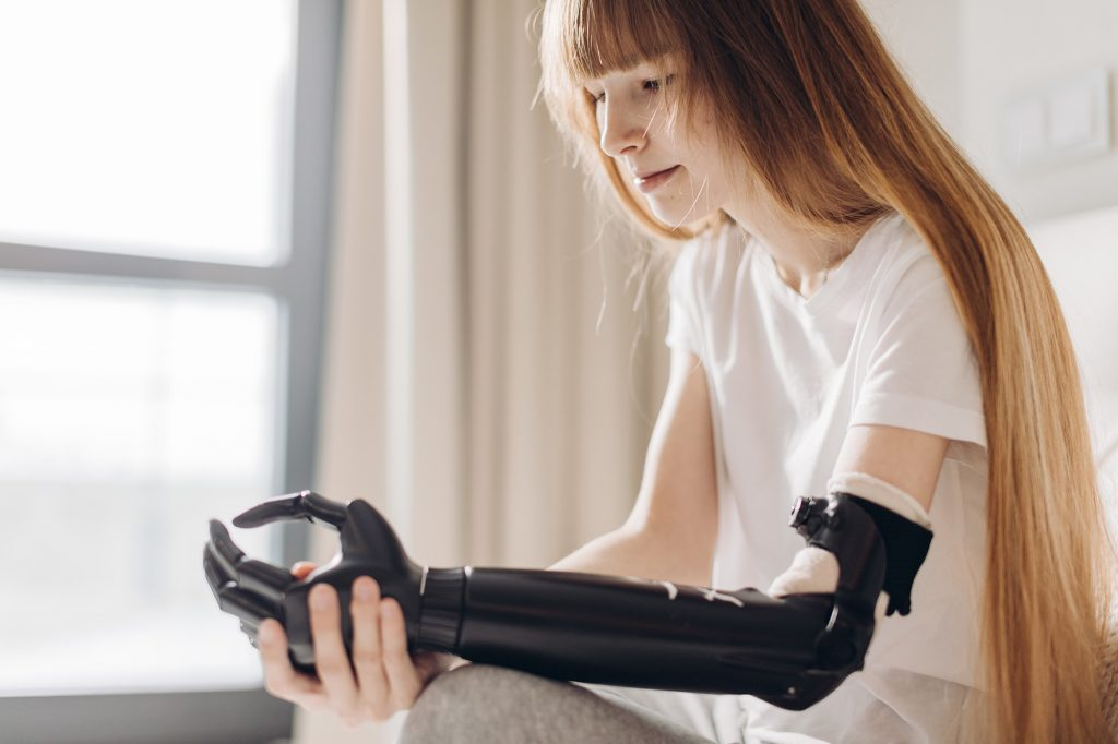 Prosthetic Arm - Limb Loss, Arm Injury, Lost hand, Injury Claims Aberdeen