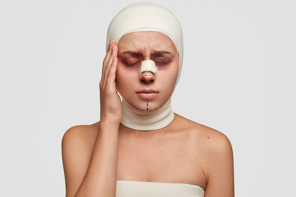 Failed Cosmetic Procedures, lip fillers, botox, face lifts - malpractice. medical negligence