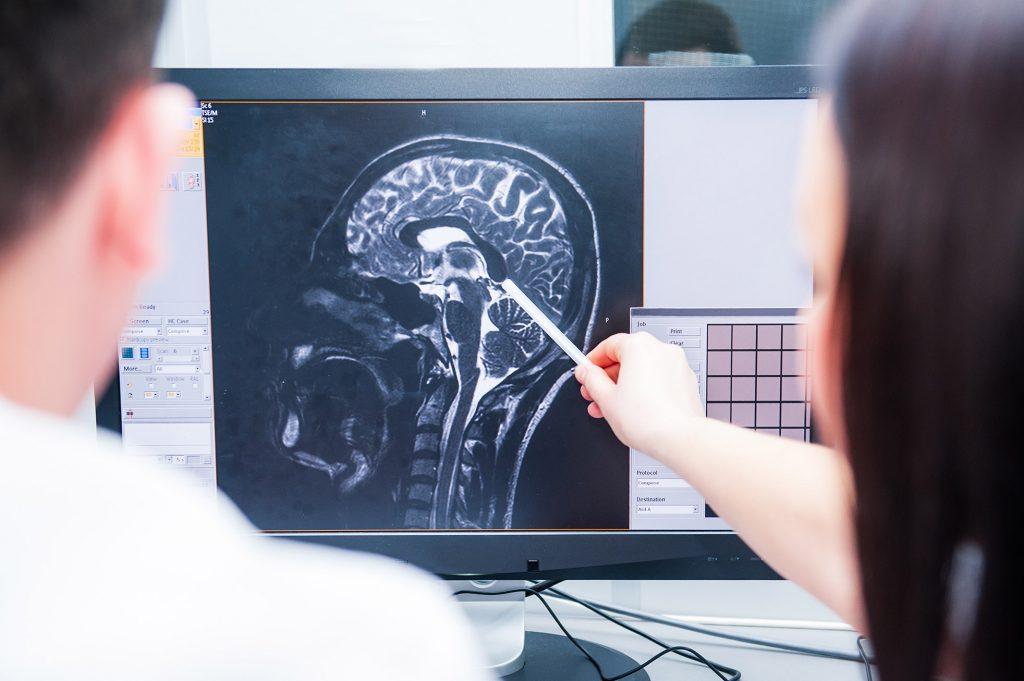 Doctors magnetic resonance image (MRI) injured brain, head injury